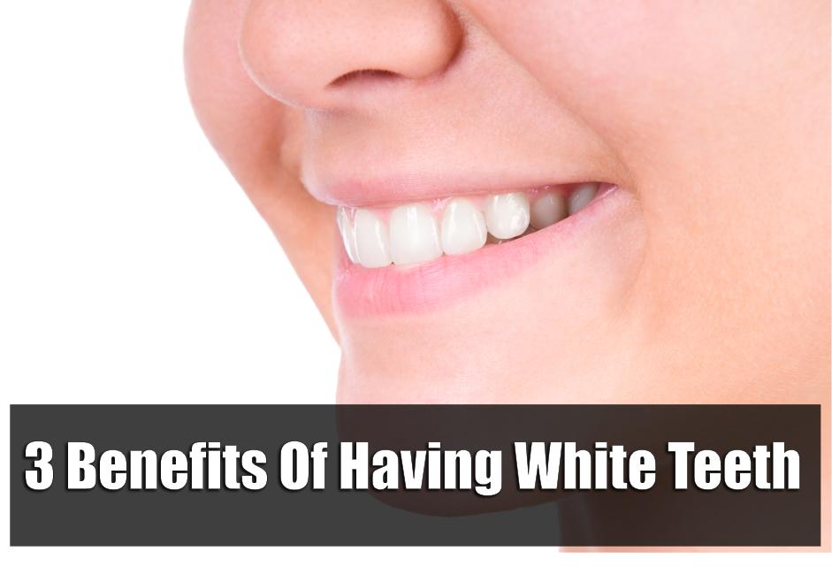 3-benefits-of-having-white-teeth