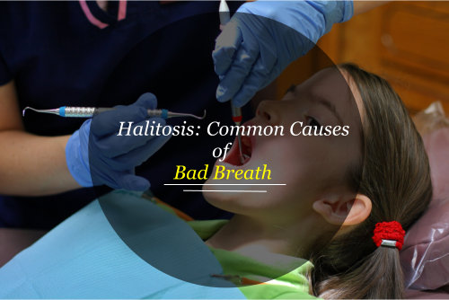 Halitosis: Common Causes of Bad Breath