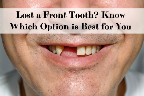 Lost a Front Tooth? Know Which Option is Best for You