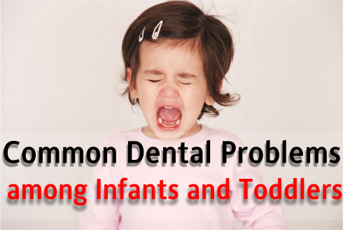 Common Dental Problems among Infants and Toddlers